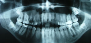x-ray of facial trauma