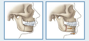drawings of facial profile before and after orthognathic surgery