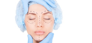 Woman's face marked with incision lines prior to facial surgery